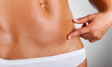 Tratamento de Quelóides e Cicatrizes Inestéticas