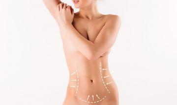 Abdominoplastia (Plástica de Abdome)
